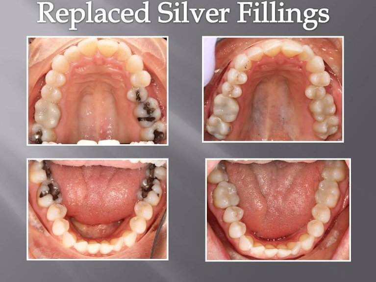 TEETH FILLING