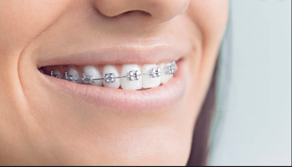 IMPORTANCE OF TEETH BRACES